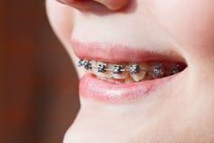 Side view of dental braces on teeth Stock Photo