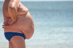 Free Side View Of Obese Guy. Stock Photography - 88034132