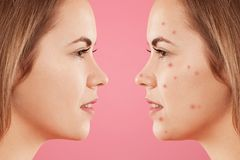 Sideways shot of two female`s faces: one with healthy pure skin and other with many pimples, has acne, constrast bewtween healthy. And unhealthy skin. Skin care stock photo