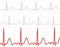 Signals on screen. Illustration of electrical activity of the human heart Stock Images