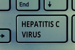 Signe des textes montrant le virus de l'hépatite C Agent infectieux de photo conceptuelle qui cause la maladie d'hépatite virale images libres de droits
