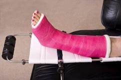 Signora con la gamba fratturata Fotografie Stock