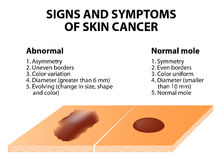 Signs and symptoms of skin cancer. ABCDE guideline - a simple and easy way to check skin for suspicious growths Royalty Free Stock Photo