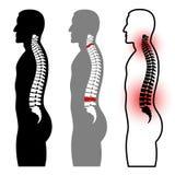 Siluetas humanas de la espina dorsal Fotografía de archivo