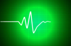Sinal de EKG Imagens de Stock Royalty Free