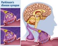 Sinapsis de Dopamina en el mal de Parkinson. Las neuronas utilizan un químico cerebral, llamado dopamina, para ayudar a controlar el movimiento muscular vector illustration
