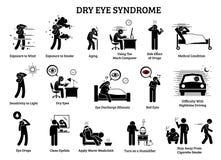 Sindrome dell'occhio asciutto illustrazione vettoriale