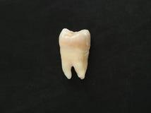 Singolo dente reale del primo piano su fondo nero Denti sani Immagini Stock Libere da Diritti