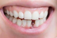 Singolo impianto del dente immagine stock
