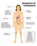 Sintomas da menopausa Imagens de Stock