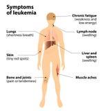 Sintomi della leucemia cancro di sangue Fotografia Stock