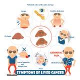 Sintomi di cancro del fegato Immagini Stock
