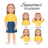 Sintomi di varicella illustrazione di stock