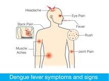 Sintomi e segni delle dengue illustrazione vettoriale