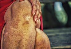 sinuous пересеченные ноги женщины с шрамами стоковая фотография rf