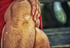 Sinuous crossed legs of woman with scars Royalty Free Stock Photography