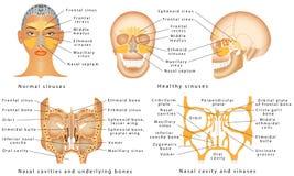 Sinus de nez Photos libres de droits