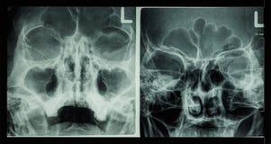 Sinus frontal d'exposition de sinus paranasal de rayon X de film, sinus maxillaire, sinus ethmoïde image libre de droits