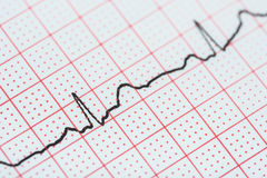 Sinus Heart Rhythm On Electrocardiogram Record Paper Showing Normal Heart Royalty Free Stock Image