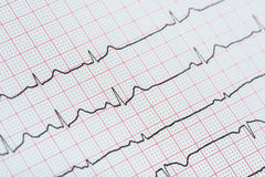 Sinus Heart Rhythm On Electrocardiogram Record Paper Showing Normal Heart Stock Image