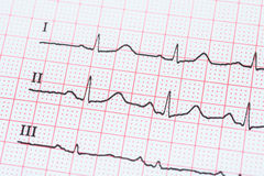Sinus Heart Rhythm On Electrocardiogram Record Paper Showing Normal Heart Stock Photo