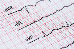 Sinus Heart Rhythm On Electrocardiogram Record Paper Showing Normal Heart Royalty Free Stock Photos