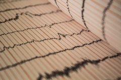 Sinus Heart Rhythm On Electrocardiogram Record Paper Showing Normal P Wave, PR and QT Interval and QRS Complex, EKG paper. Sinus Heart Rhythm On stock photos