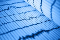 Sinus Heart Rhythm On Electrocardiogram Record Paper Showing Normal P Wave, PR and QT Interval and QRS Complex. Sinus Heart Rhythm On Electrocardiogram Record royalty free stock photos