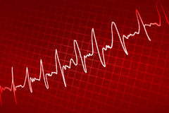 Cardiogram screen Stock Photos