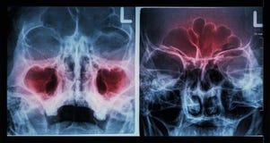 Sinus paranasal de rayon X de film : montrez la sinusite au sinus maxillaire (a laissé l'image), sinus frontal (la bonne image) image libre de droits