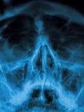 Sinus X-ray. X-ray  - sinuses and nasal bones Stock Image