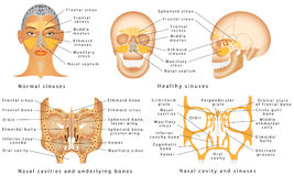 Sinuses of Nose Royalty Free Stock Photos