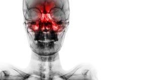 Sinusite na cavidade frontal, ethmoid, maxillary Filme o raio X do crânio e anule a área no lado direito foto de stock