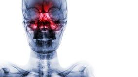 Sinusitis en el sino frontal, etmoideo, maxilar Filme la radiografía del cráneo y esconda el área en el lado derecho fotos de archivo libres de regalías