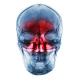 Sinusitis . Film x-ray of human skull with inflamed at sinus Stock Images