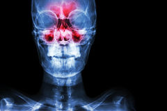 Sinusitis royalty free stock images