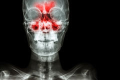 Sinusitis. Film x-ray skull AP ( anterior - posterior ) show infection and inflammation at frontal sinus , ethmoid sinus , maxillary sinus and blank area at Stock Image