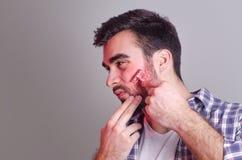 Sirva tener irritación mientras que afeita, manipulación de la foto foto de archivo libre de regalías
