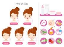 Sistema de la muchacha con acné en iconos de la cara y del tratamiento Imagen de archivo libre de regalías