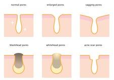 Sistema de poros de la piel: normal, el ceder, agrandado, espinilla, whitehead y acné marque con una cicatriz Fotografía de archivo libre de regalías
