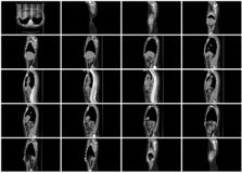 Sistema del paso de la exploración del Ct de la opinión sagital del cuerpo imagen de archivo libre de regalías