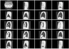 Sistema del paso de la exploración del Ct de la opinión sagital del pulmón del cuerpo fotos de archivo libres de regalías