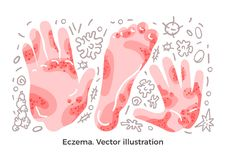 Sistema del vector Eczema, síntoma de la enfermedad, bacterias Erupciones de piel en el brazo, mano Ejemplo del arte ilustración del vector