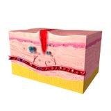 Sistema di risposta immunitaria di pelle umana Fotografie Stock Libere da Diritti