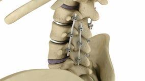 Sistema espinal de la fijación - corchete titanium Médicamente exacto stock de ilustración