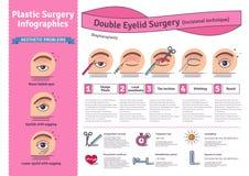 Sistema ilustrado vector con cirugía doble del párpado