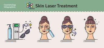 Sistema ilustrado vector con el tratamiento del laser de la piel del salón
