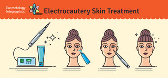 Sistema ilustrado vector con trea de la piel de la electrocauterización de la cosmetología