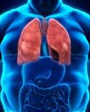 Sistema respiratorio de cuerpo gordo Fotos de archivo