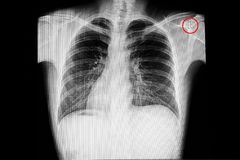 Situs inversus. Chest x-ray showing situs inversus & x28;situs transversus or oppositus& x29;, a congenital condition in which the major visceral organs are stock images